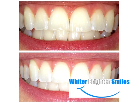 Get an in-office teeth-whitening session for only $29.50! Buy up to 3!